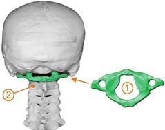 Los Angeles Chiropractor--atlas subluxation, neck pain